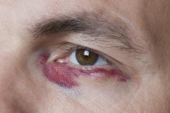 Как можно травмировать глаз пылесосом?